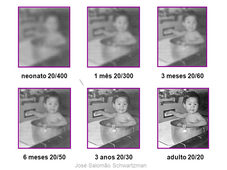 neonato 20/4001 mês 20/3003 meses 20/60 6 meses 20/503 anos 20/30adulto 20/20 José Salomão Schwartzman