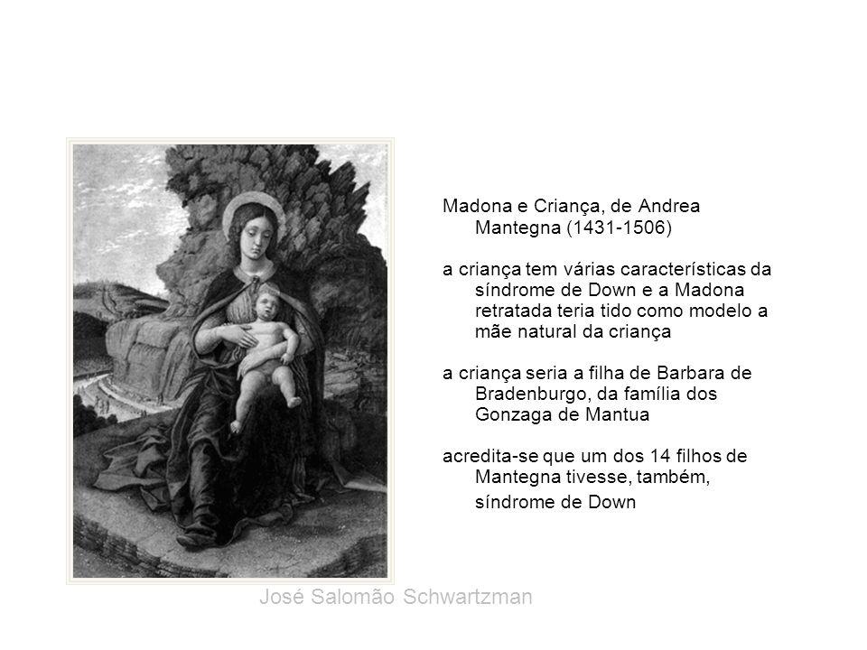 Madona e Criança, de Andrea Mantegna (1431-1506) a criança tem várias características da síndrome de Down e a Madona retratada teria tido como modelo