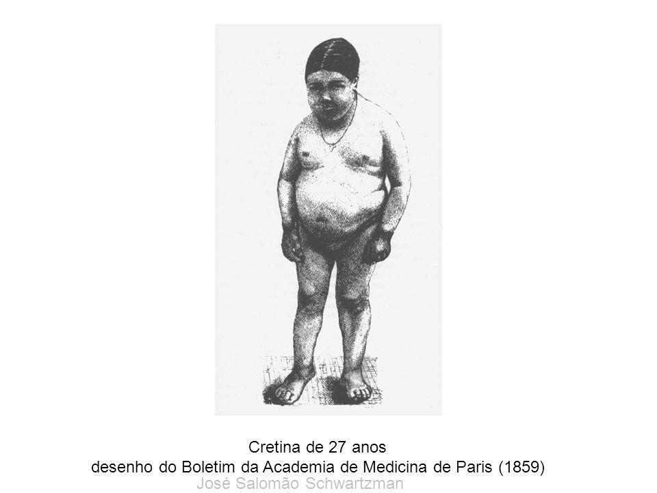 Cretina de 27 anos desenho do Boletim da Academia de Medicina de Paris (1859) José Salomão Schwartzman