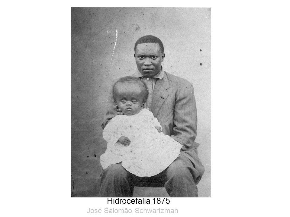 Hidrocefalia 1875 José Salomão Schwartzman