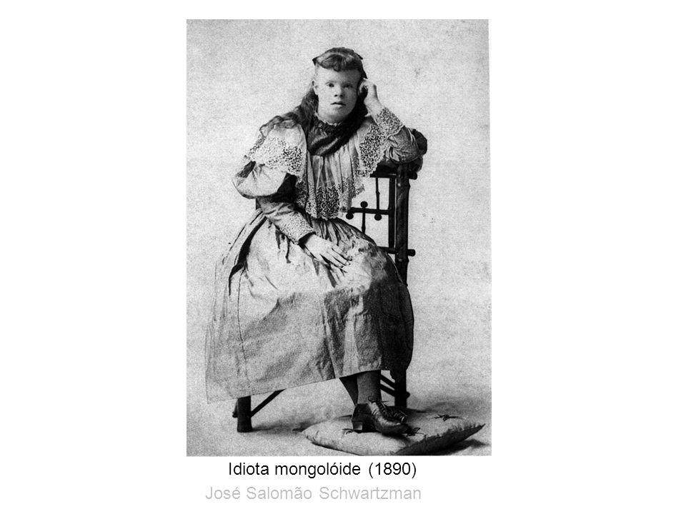 Idiota mongolóide (1890) José Salomão Schwartzman