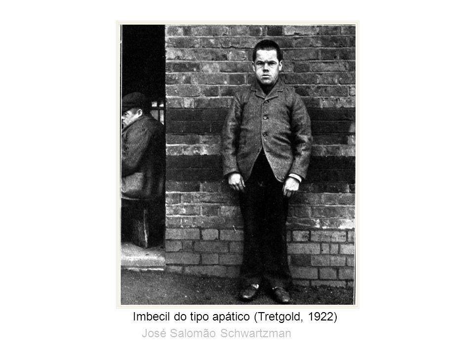 Imbecil do tipo apático (Tretgold, 1922) José Salomão Schwartzman
