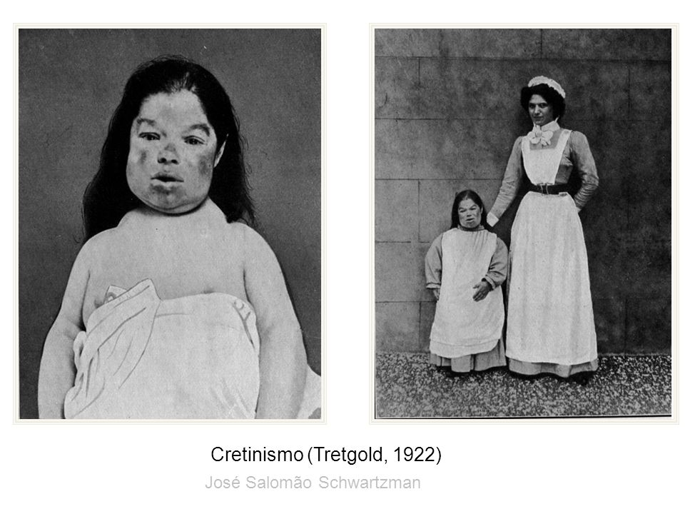 Cretinismo (Tretgold, 1922) José Salomão Schwartzman