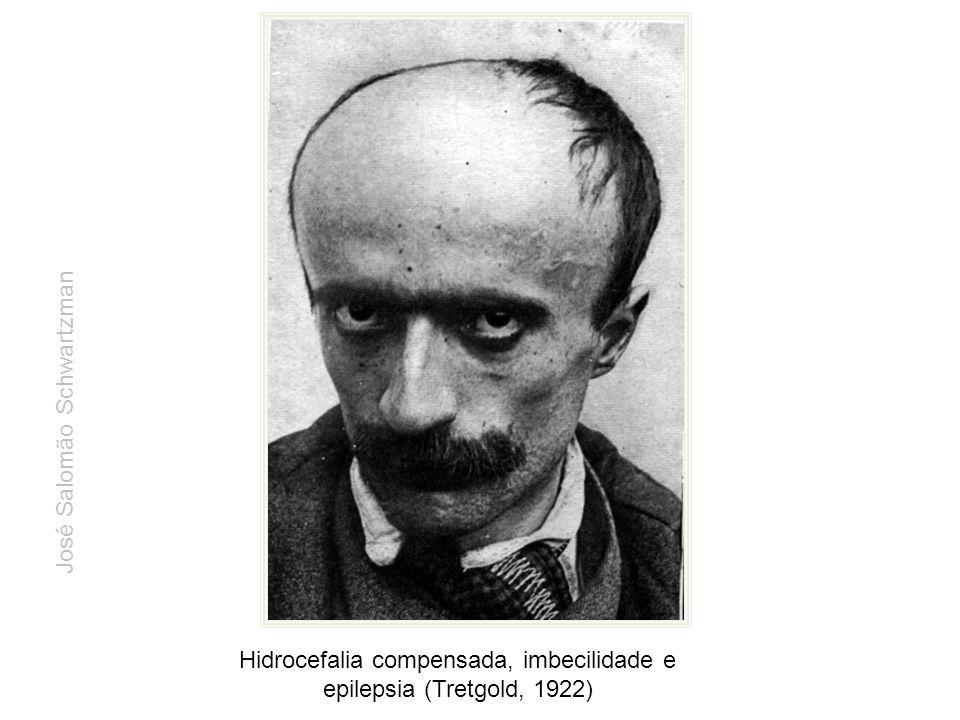 Hidrocefalia compensada, imbecilidade e epilepsia (Tretgold, 1922) José Salomão Schwartzman