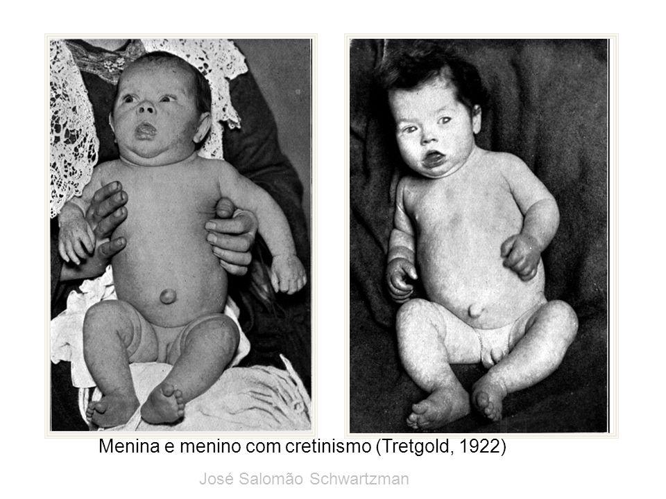 Menina e menino com cretinismo (Tretgold, 1922) José Salomão Schwartzman
