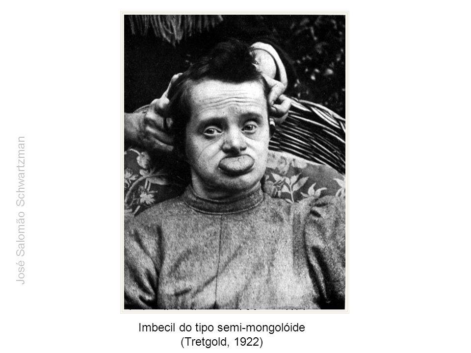 Imbecil do tipo semi-mongolóide (Tretgold, 1922) José Salomão Schwartzman