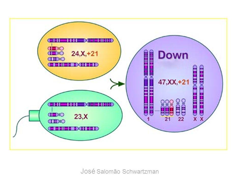 47, XX, +21 José Salomão Schwartzman