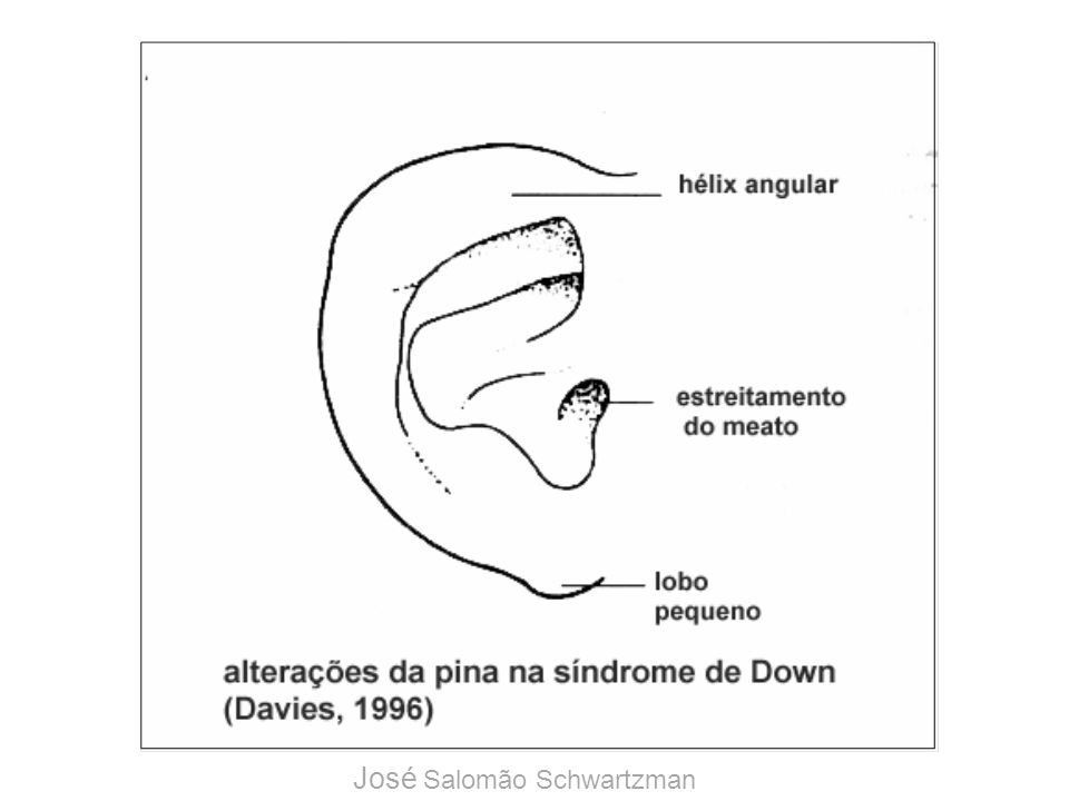 Síndrome de Down: pavilhão auricular José Salomão Schwartzman