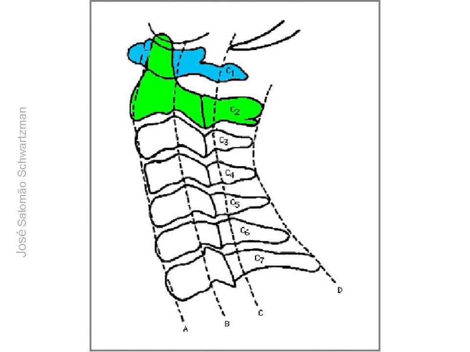 Anatomia topográfica da região da articulação atlanto-axial José Salomão Schwartzman