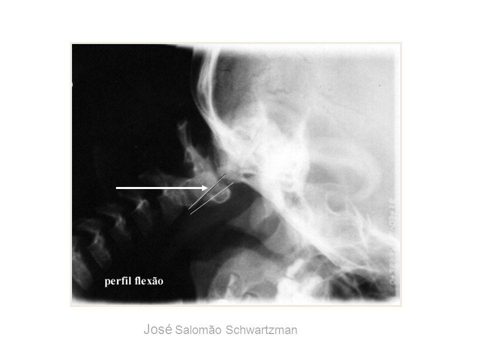 odontóide arco anterior do atlas Esquema da articulação atlanto-axial José Salomão Schwartzman