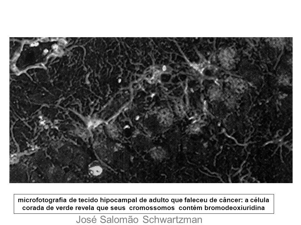 microfotografia de tecido hipocampal de adulto que faleceu de câncer: a célula corada de verde revela que seus cromossomos contém bromodeoxiuridina Jo