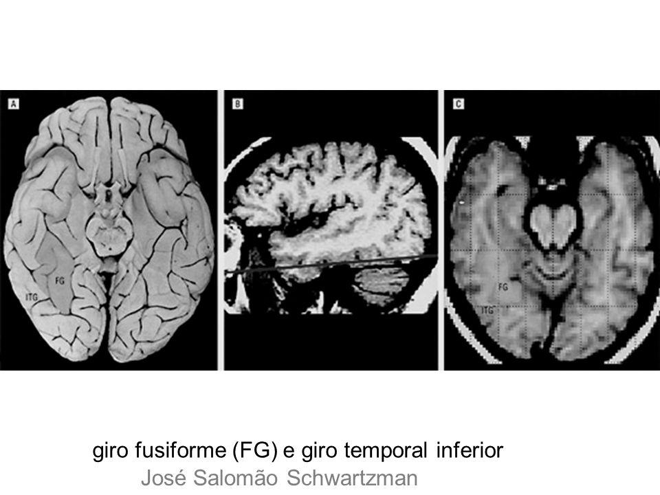 giro fusiforme (FG) e giro temporal inferior DE José Salomão Schwartzman