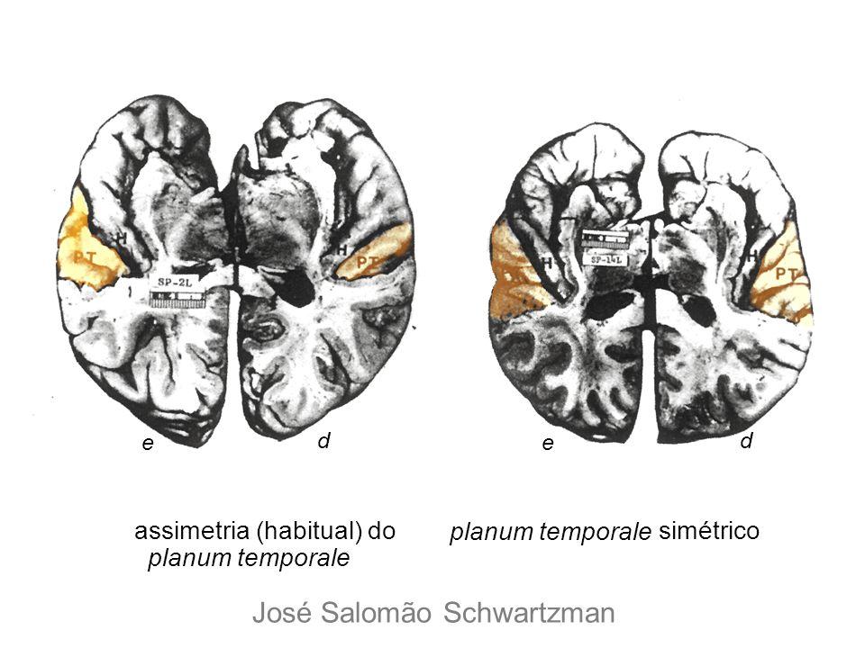 assimetria (habitual) do planum temporale simétrico e d e d José Salomão Schwartzman