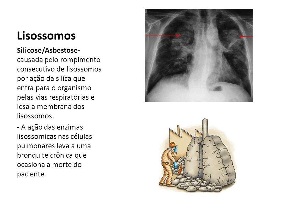 Lisossomos Silicose/Asbestose- causada pelo rompimento consecutivo de lisossomos por ação da silíca que entra para o organismo pelas vias respiratórias e lesa a membrana dos lisossomos.