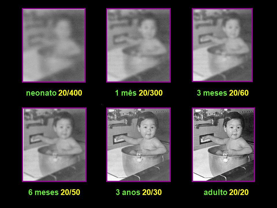 neonato 20/4001 mês 20/3003 meses 20/60 6 meses 20/503 anos 20/30adulto 20/20