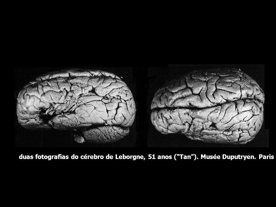 Localização das funções cerebrais histórico Broca interpretou o quadro de Tan como um distúrbio peculiar da memória, envolvendo a memória para os movi