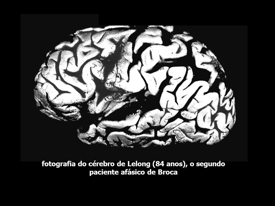 duas fotografias do cérebro de Leborgne, 51 anos (Tan). Musée Duputryen. Paris