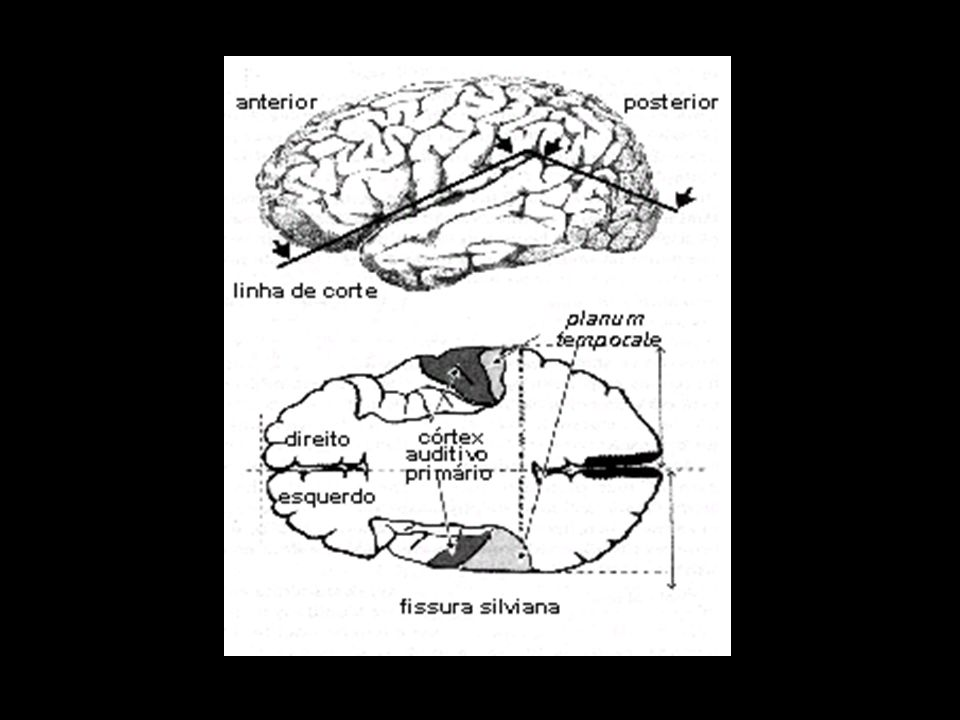 abc abc a- feto de 16 semanas b- adultoc- fóssil de Neanderthal 60000 anos assimetrias do sulco lateral E D