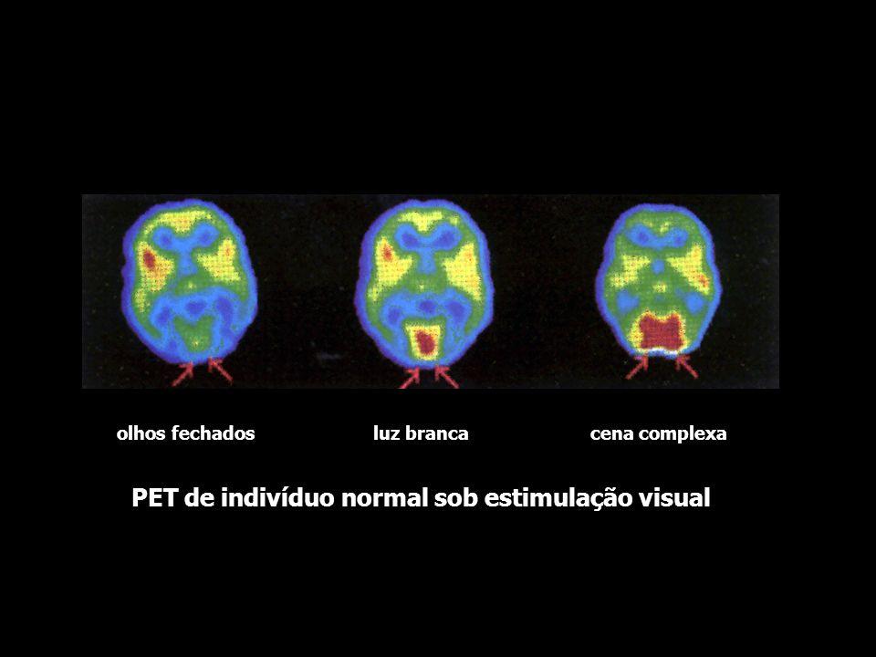 PET de indivíduo normal em repouso