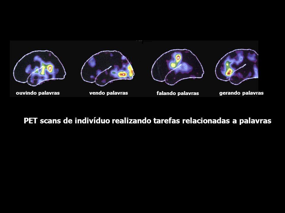 PET de indivíduo normal sob estimulação visual olhos fechadosluz brancacena complexa