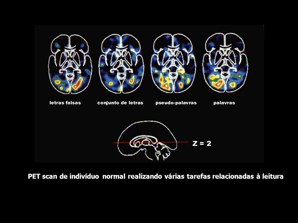 PET scans de indivíduo realizando tarefas relacionadas a palavras ouvindo palavrasvendo palavras falando palavras gerando palavras