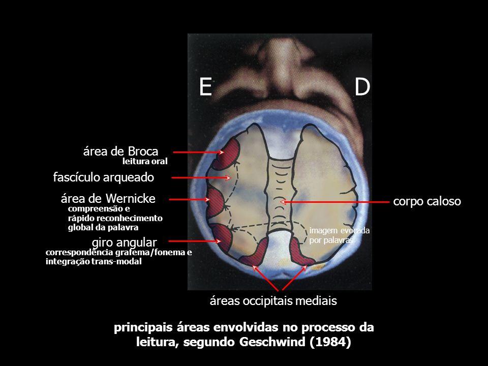 1 2 3 4 5 6 fascículo arqueado do núcleo geniculado lateral área de Broca área facial do córtex (área 4) área de Wernicke (área 22) área de associação