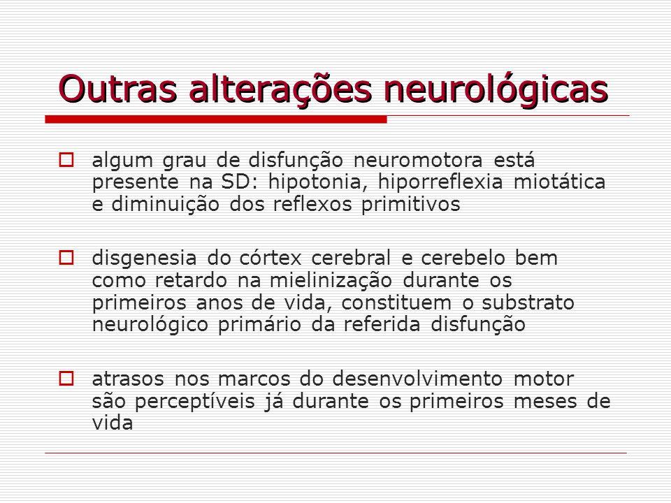 Outras alterações neurológicas algum grau de disfunção neuromotora está presente na SD: hipotonia, hiporreflexia miotática e diminuição dos reflexos p