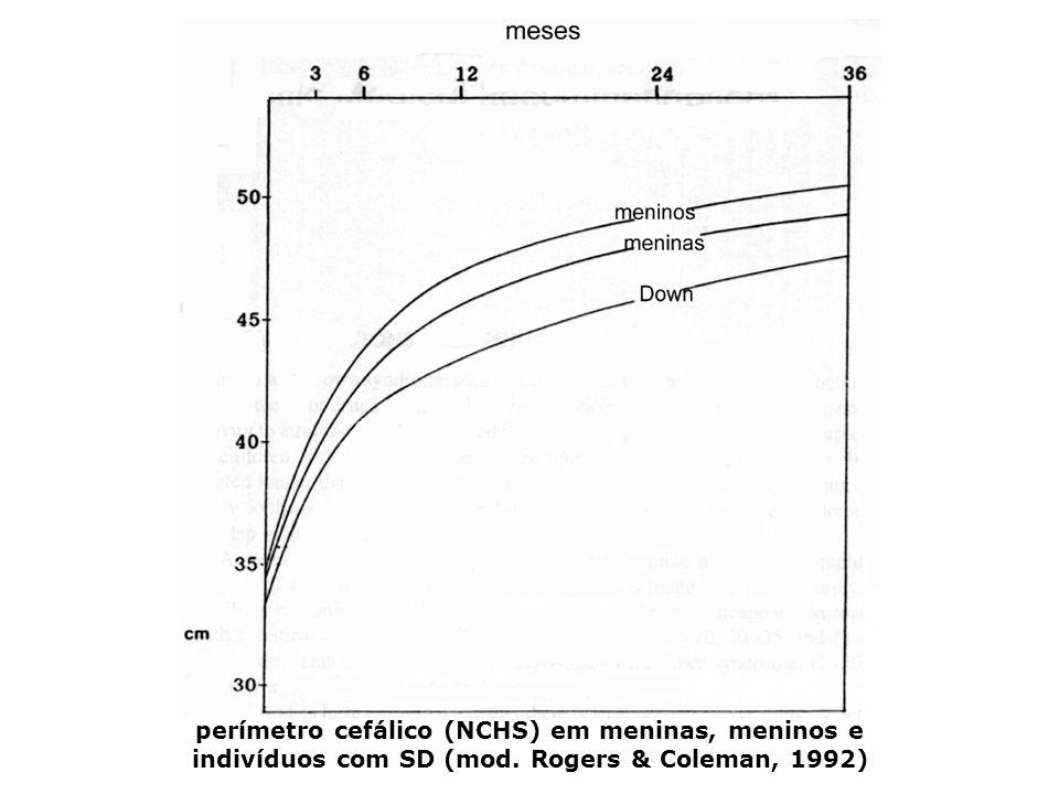 perímetro cefálico (NCHS) em meninas, meninos e indivíduos com SD (mod. Rogers & Coleman, 1992)