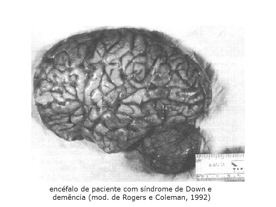 encéfalo de paciente com síndrome de Down e demência (mod. de Rogers e Coleman, 1992)