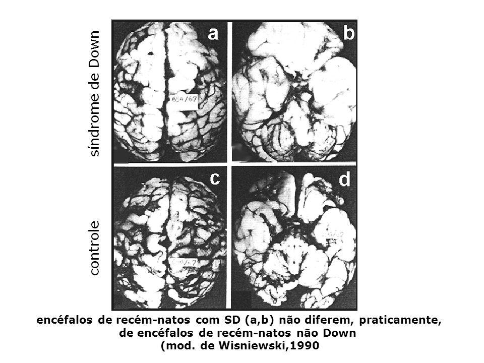 após os 3-5 meses de idade, as diferenças anatômicas entre crianças com (a,c) e sem SD (b,d) são evidentes: diminuição dos lobos frontais, achatamento dos pólos occipitais e menor tamanho do tronco cerebral e cerebelo (mod.