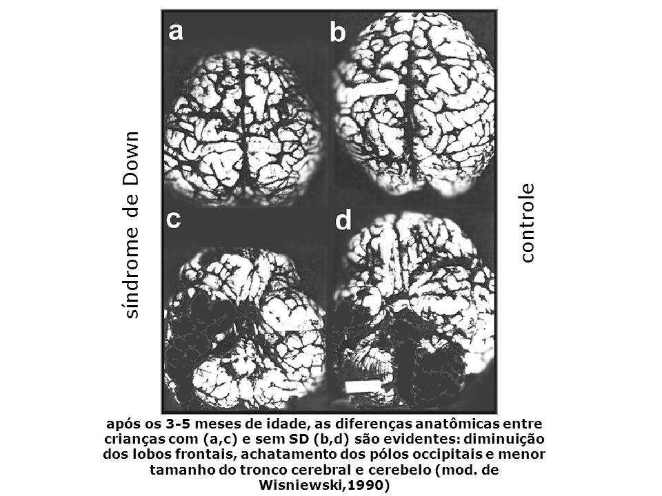 Alterações neurológicas Wisniewski (1990) acompanhou 780 crianças com SD, do nascimento até os 5 anos de idade ao nascimento, a forma do encéfalo era similar ao de crianças não Down enquanto que o peso situava-se nas faixas inferiores da normalidade entre 3 e 6 meses de idade ocorria uma desaceleração do crescimento do encéfalo que podia ser avaliado pelo perímetro cefálico em 69% dos casos, entre os 7 e 12 meses de idade, o peso do encéfalo mostrava-se abaixo dos valores normais
