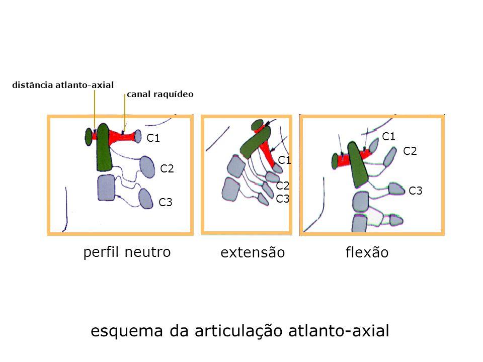 distância atlanto-axial canal raquídeo C1 C2 C3 perfil neutro flexão extensão esquema da articulação atlanto-axial