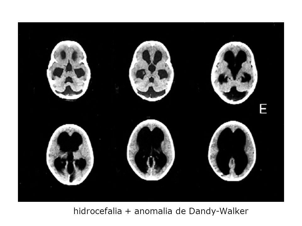 hidrocefalia + anomalia de Dandy-Walker