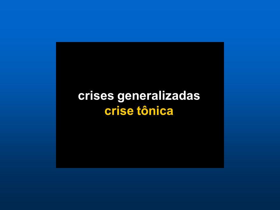 crises generalizadas crise tônica