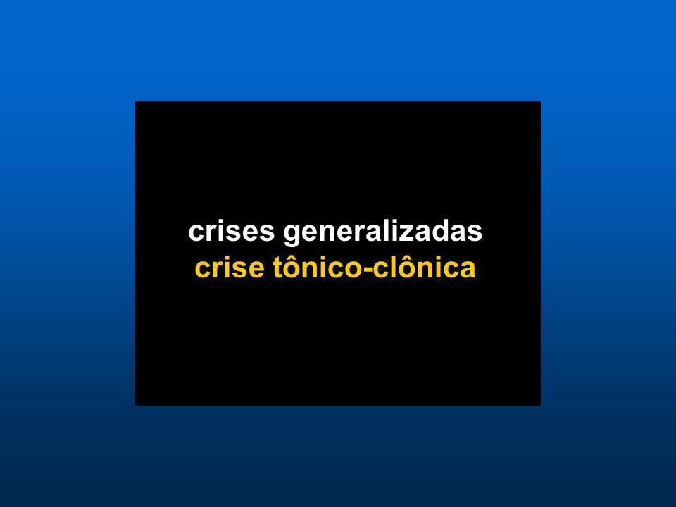 crises generalizadas crise tônico-clônica