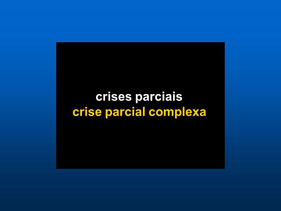 crises parciais crise parcial complexa