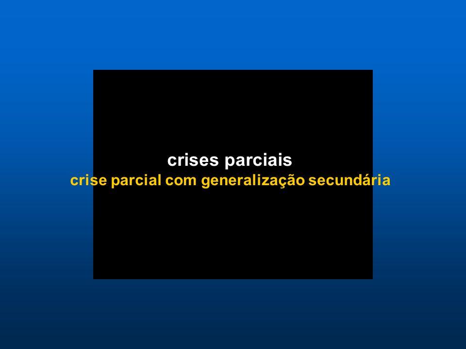 crises parciais crise parcial com generalização secundária