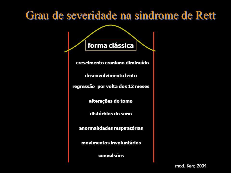 Grau de severidade na síndrome de Rett crescimento craniano diminuído regressão por volta dos 12 meses forma clássica desenvolvimento lento alterações