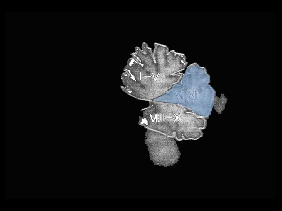 autista hiperplasia normal autista hipoplasia modificado de Courchesne et al. (1994)