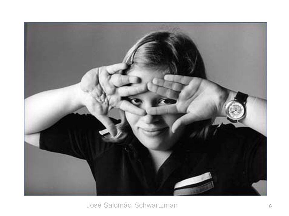 neurofibroma plexiforme na mão direita 8 José Salomão Schwartzman