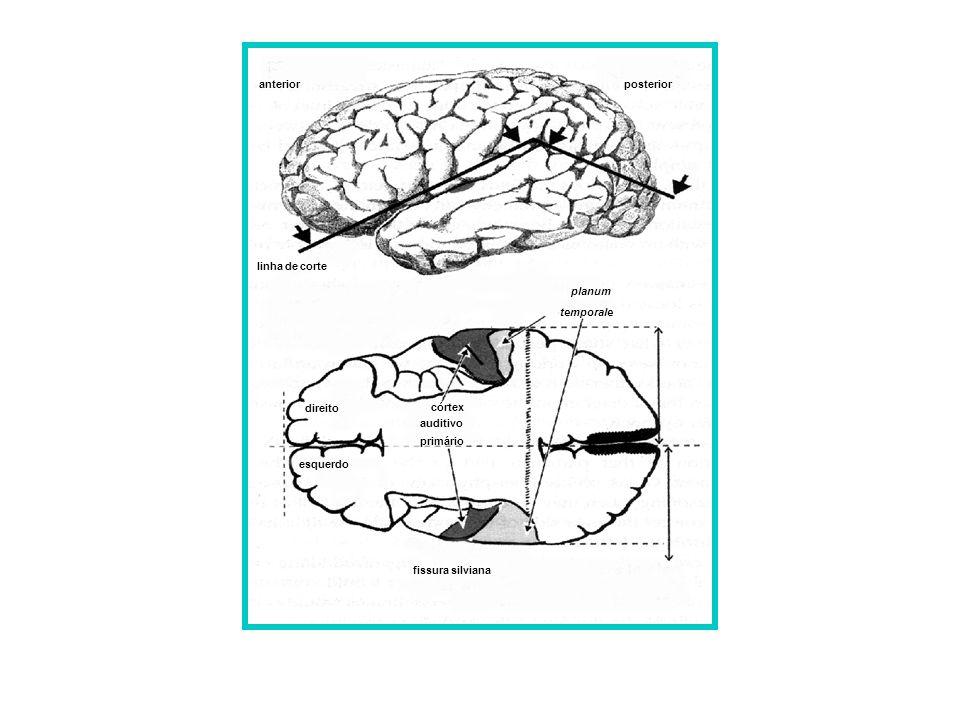 linha de corte córtex auditivo primário planum temporale direito esquerdo fissura silviana anterior posterior assimetrias hemisféricas