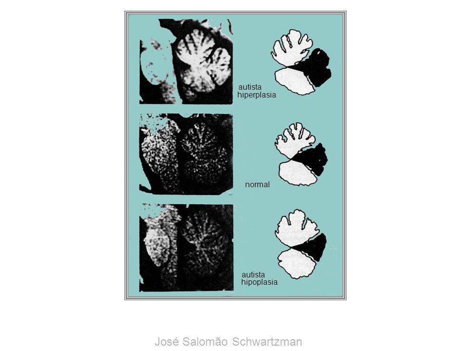 autista hiperplasia normal autista hipoplasia modificado de Courchesne et al. (1994) José Salomão Schwartzman