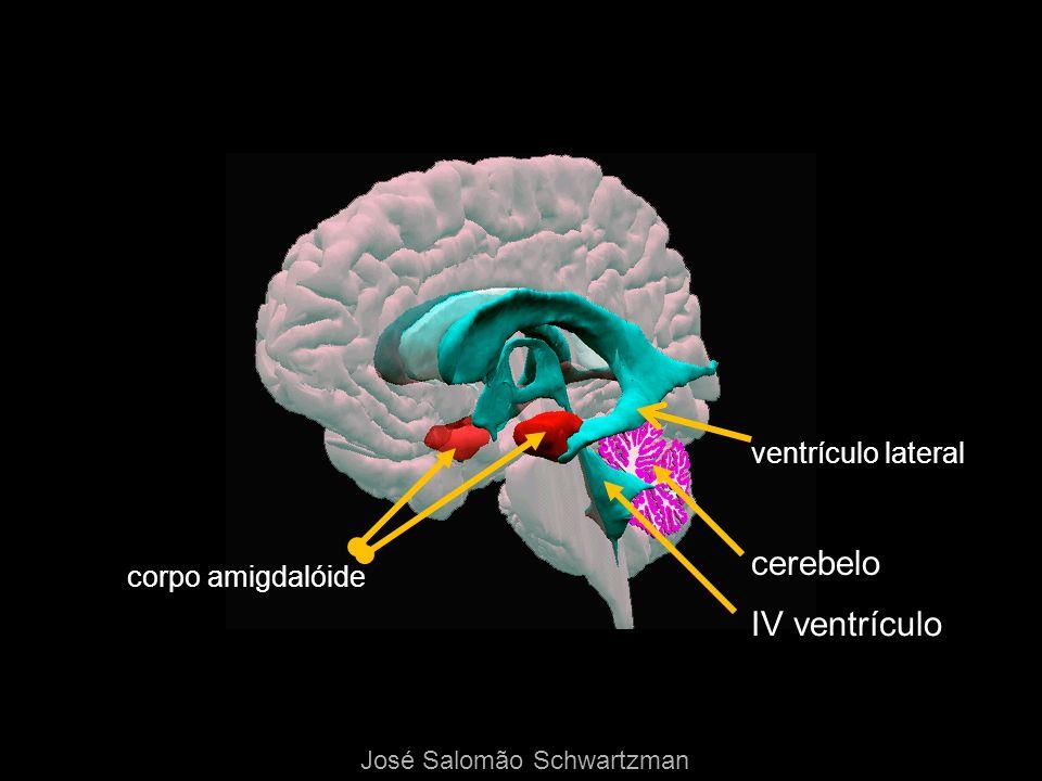 corpo amigdalóide ventrículo lateral cerebelo IV ventrículo José Salomão Schwartzman
