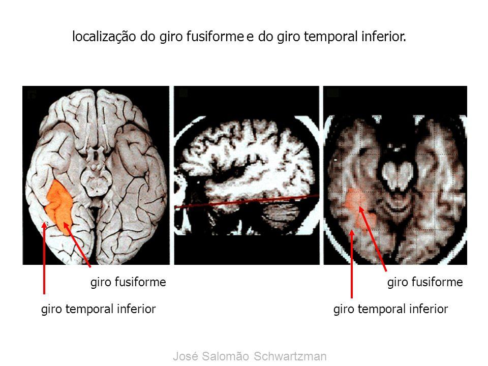 giro fusiforme giro temporal inferior giro fusiforme giro temporal inferior localização do giro fusiforme e do giro temporal inferior. DE José Salomão