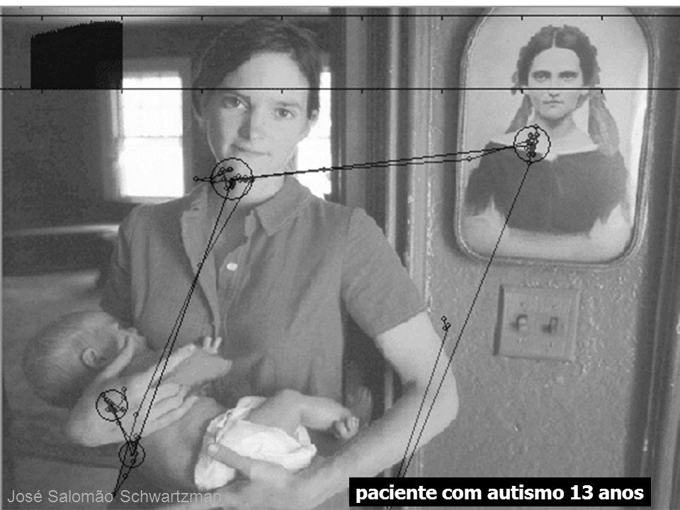 paciente com autismo 13 anos José Salomão Schwartzman
