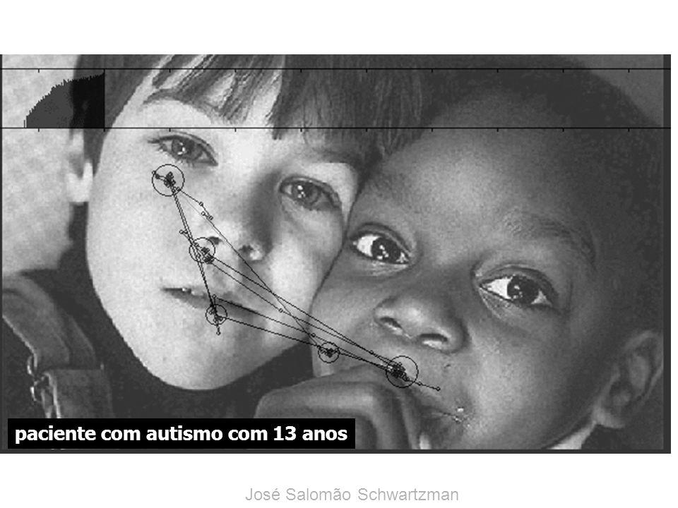 paciente com autismo com 13 anos José Salomão Schwartzman