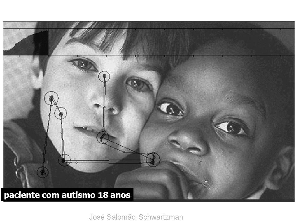 paciente com autismo 18 anos José Salomão Schwartzman