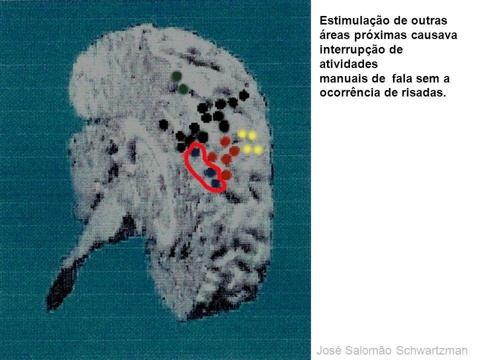 Estimulação de outras áreas próximas causava interrupção de atividades manuais de fala sem a ocorrência de risadas. José Salomão Schwartzman