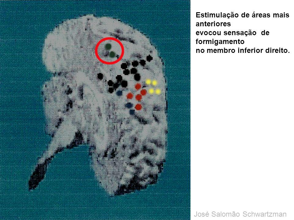 Estimulação de áreas mais anteriores evocou sensação de formigamento no membro inferior direito. José Salomão Schwartzman