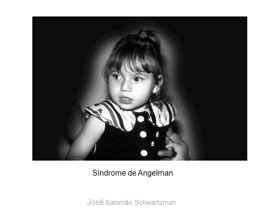 Síndrome de Angelman José Salomão Schwartzman